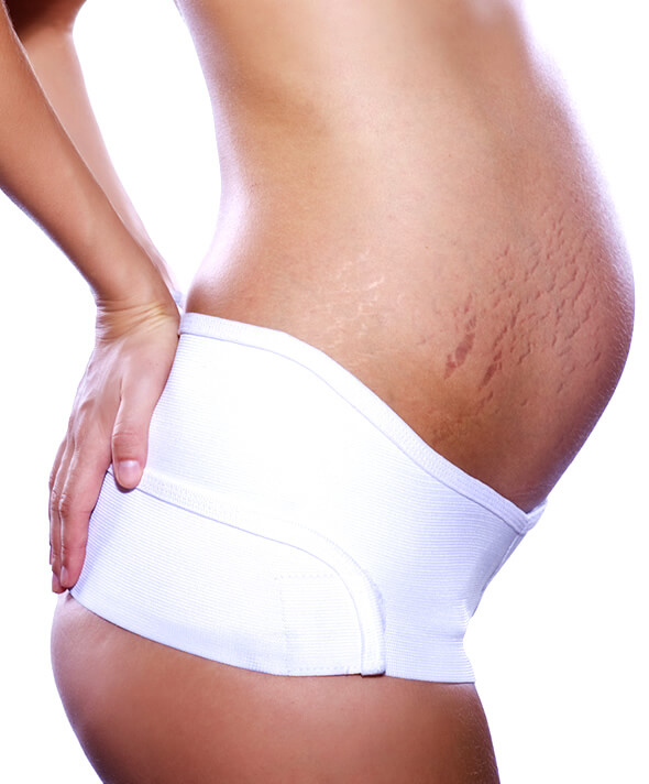 pregnant woman belly with purple stretch marks