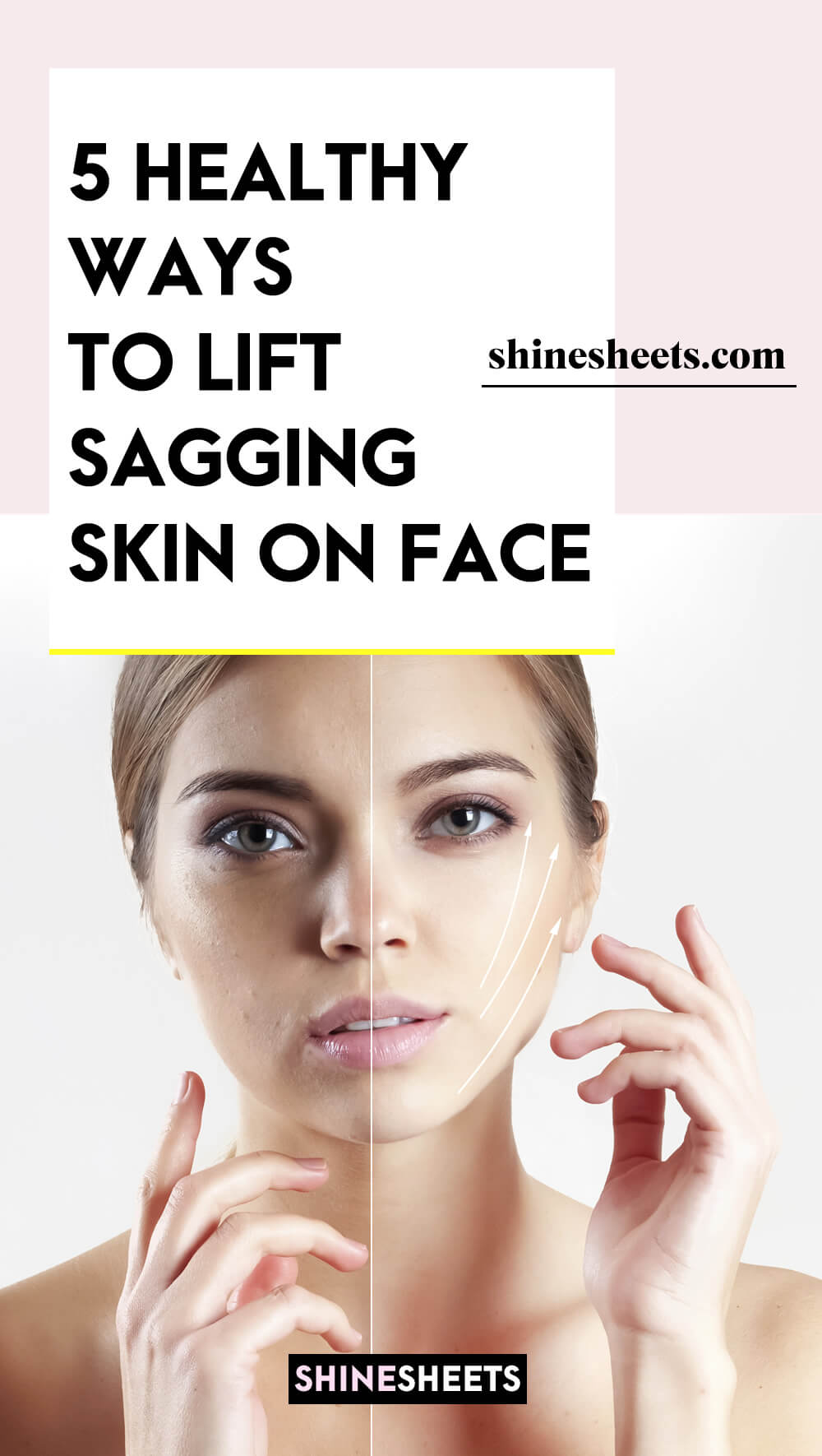 woman before after lifting sagging skin on face