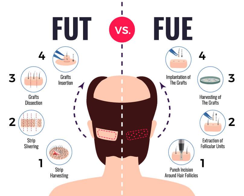 fut vs fue hair transplant infographic