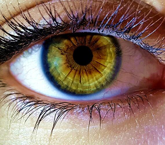 strained eyes