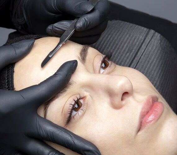 woman having a dermablading session