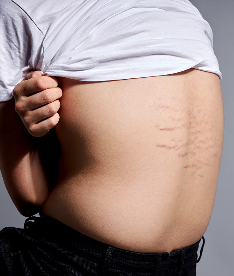 young person with fresh purple stretch marks on back