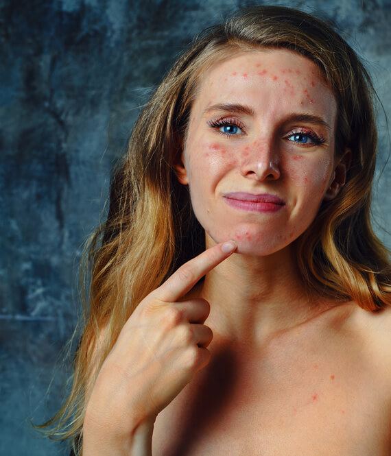 girl with unhealthy skin