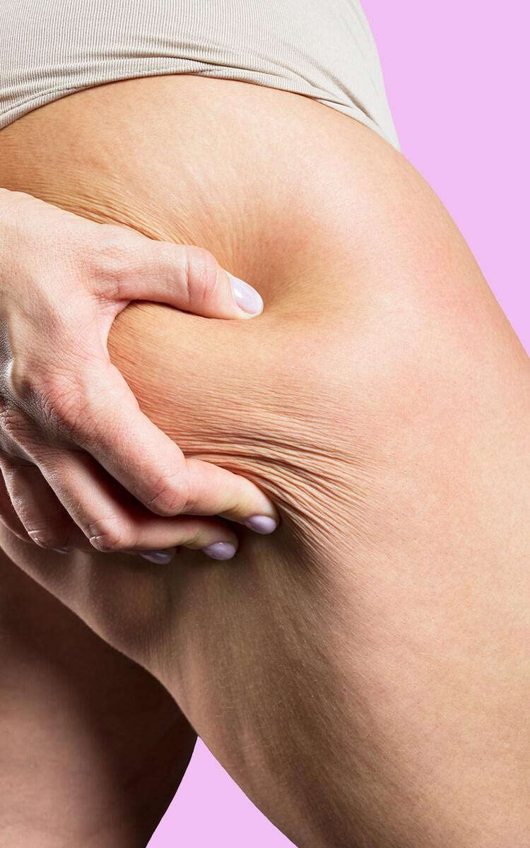 woman touching her sagging skin on legs